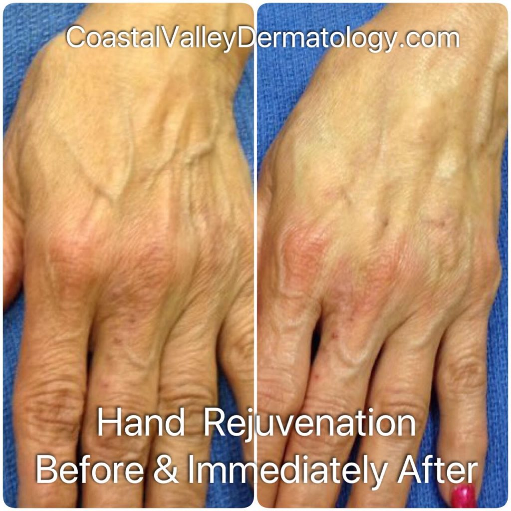 coastal-valley-dermatology-hand-rejuvenation-injectable-photo