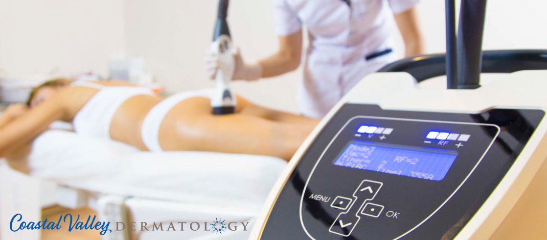 coastal-valley-dermatology-carmel-cellulite-reduction-viora-photo