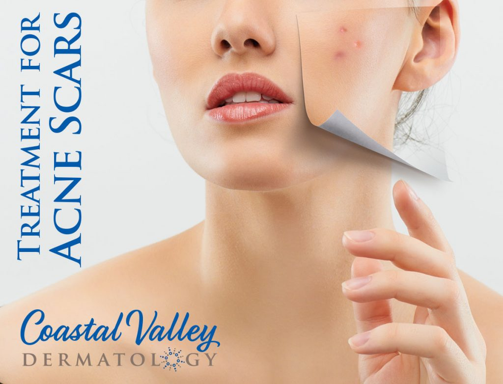 coastal-valley-dermatology-carmel-acne-scars-laser-treatment-photo