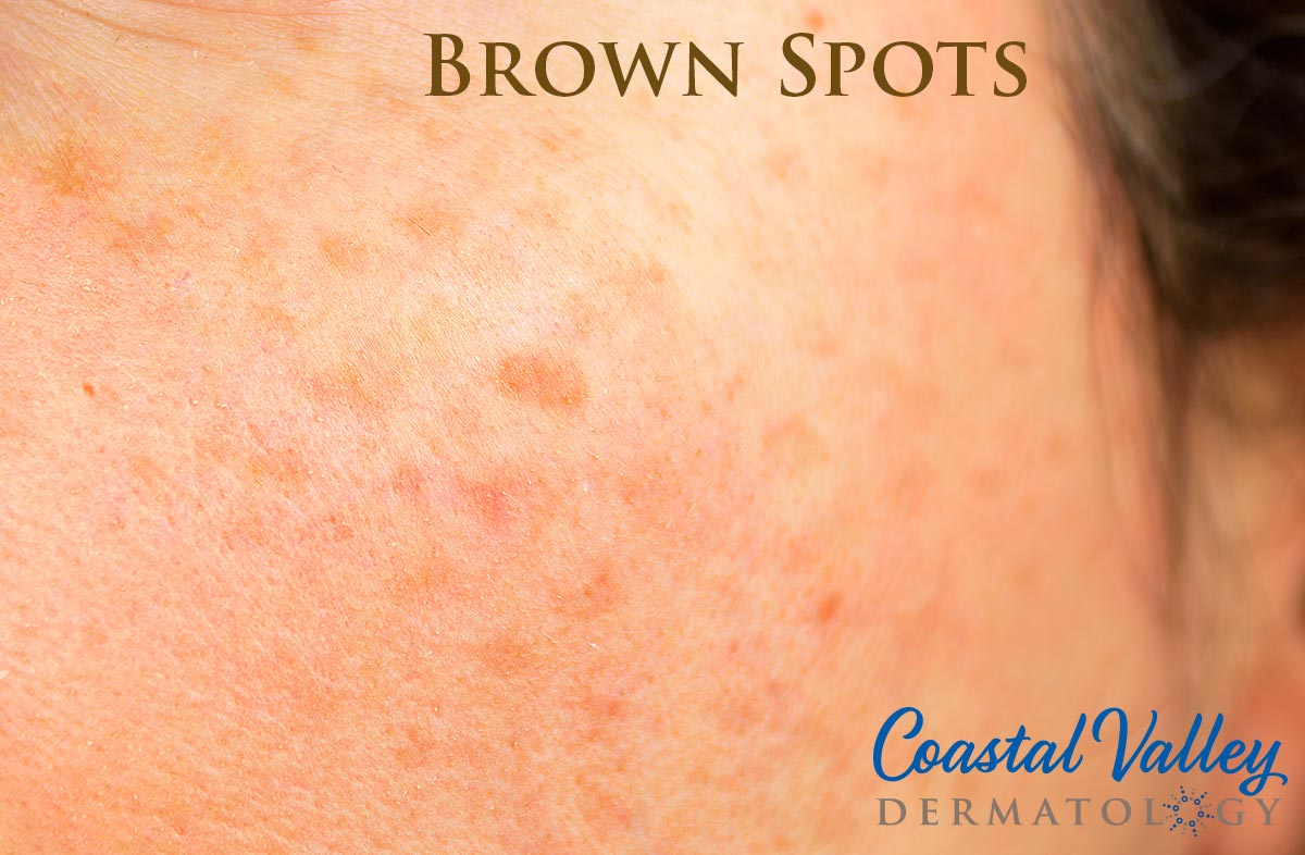 coastal-valley-dermatology-carmel-brown-spots-treatments-photo