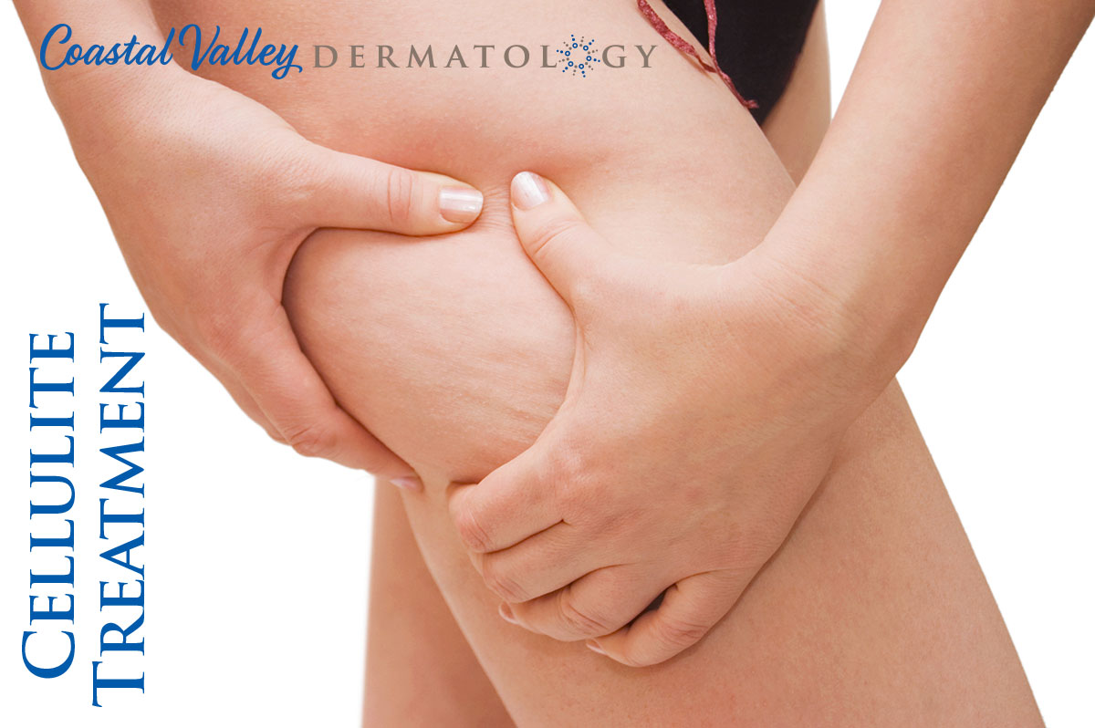 coastal-valley-dermatology-carmel-cellulite-treatment-photo