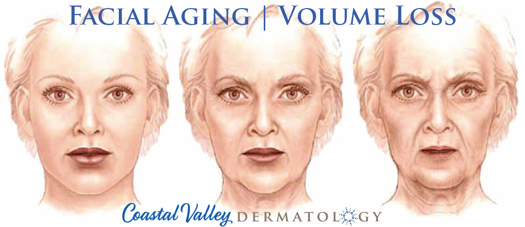coastal-valley-dermatology-carmel-facial-volume-loss-photo