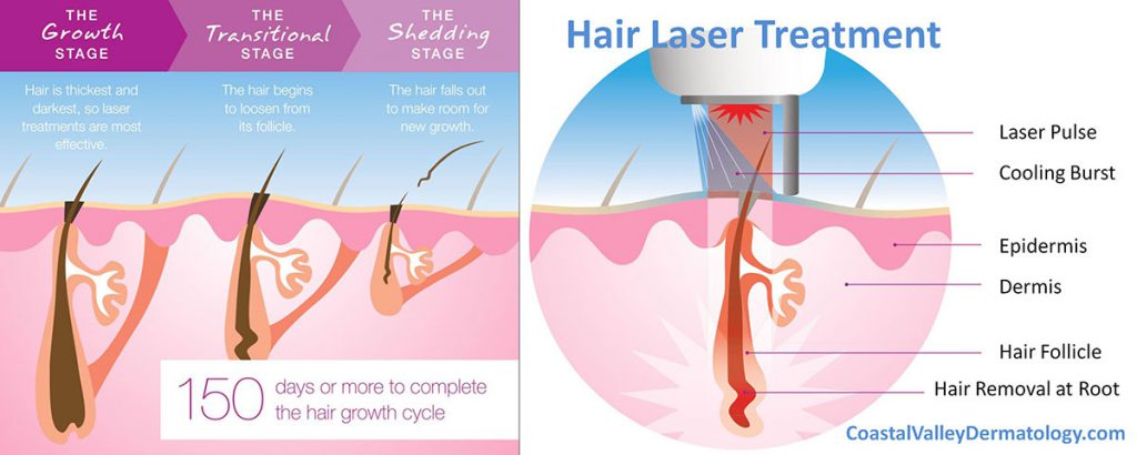 Laser Hair Removal Coastal Valley Dermatology