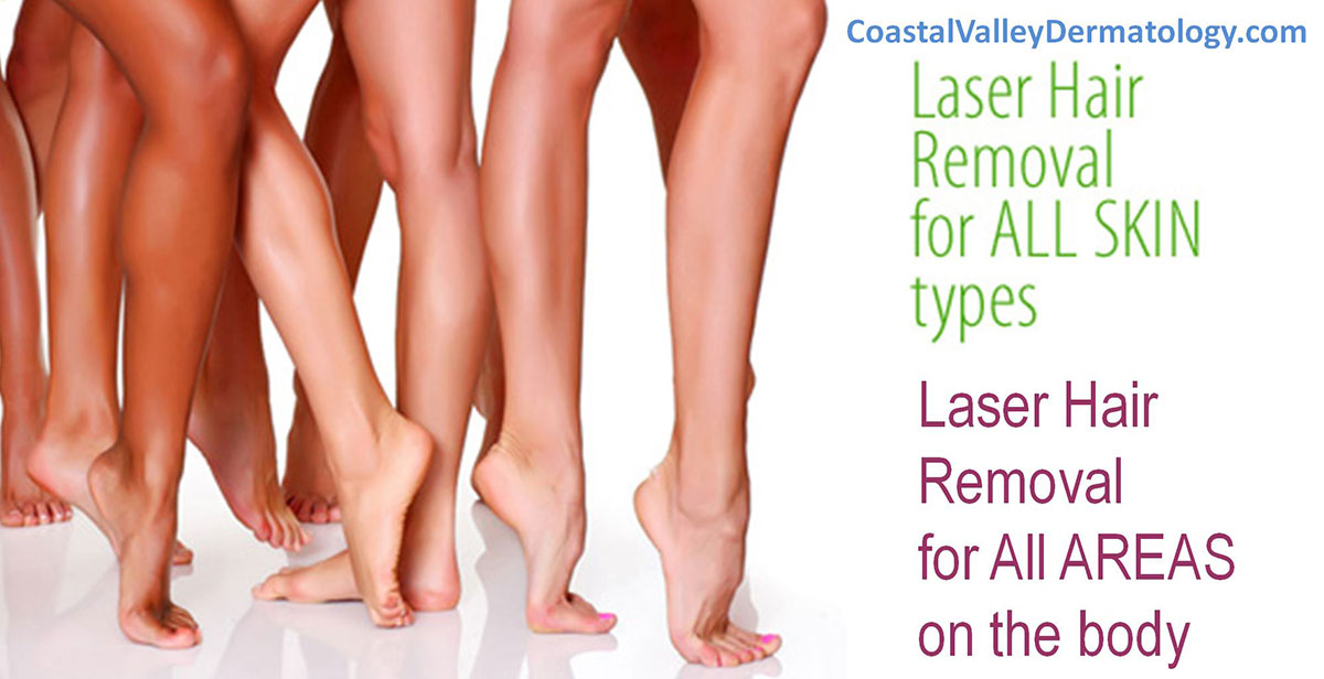 coastal-valley-dermatology-carmel-hair-laser-skin-type-photo