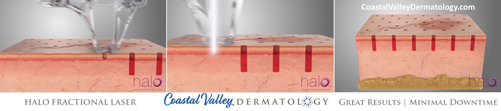 coastal-valley-dermatology-carmel-halo-dual-laser-rejuvenation-photo