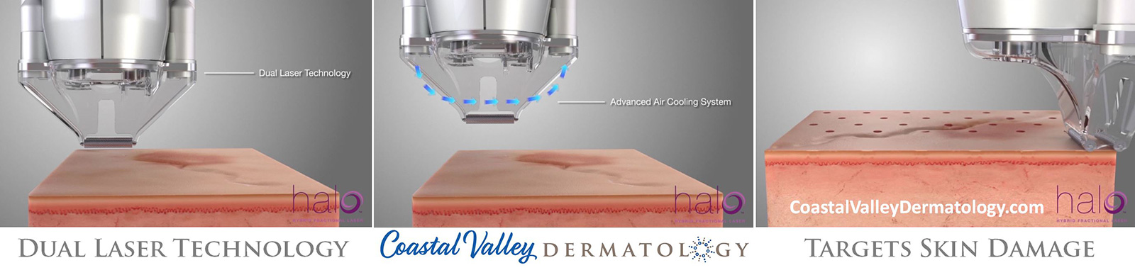 coastal-valley-dermatology-carmel-halo-dual-laser-technology-photo