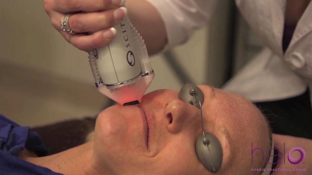 coastal-valley-dermatology-carmel-halo-laser-treatment-photo