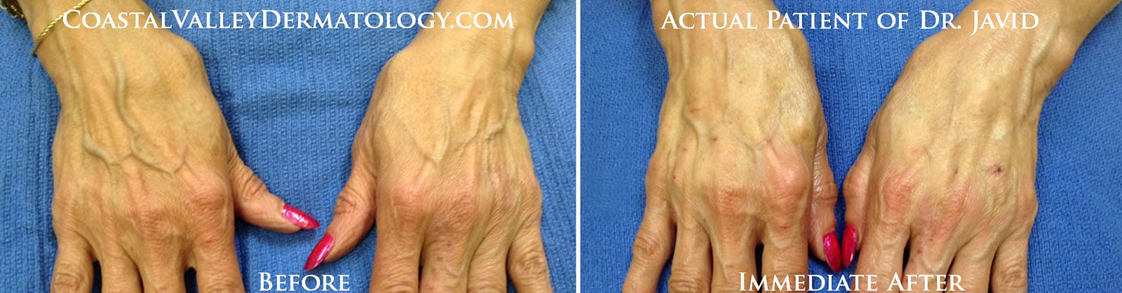coastal-valley-dermatology-carmel-hand-rejuvenation-radiesse-photo