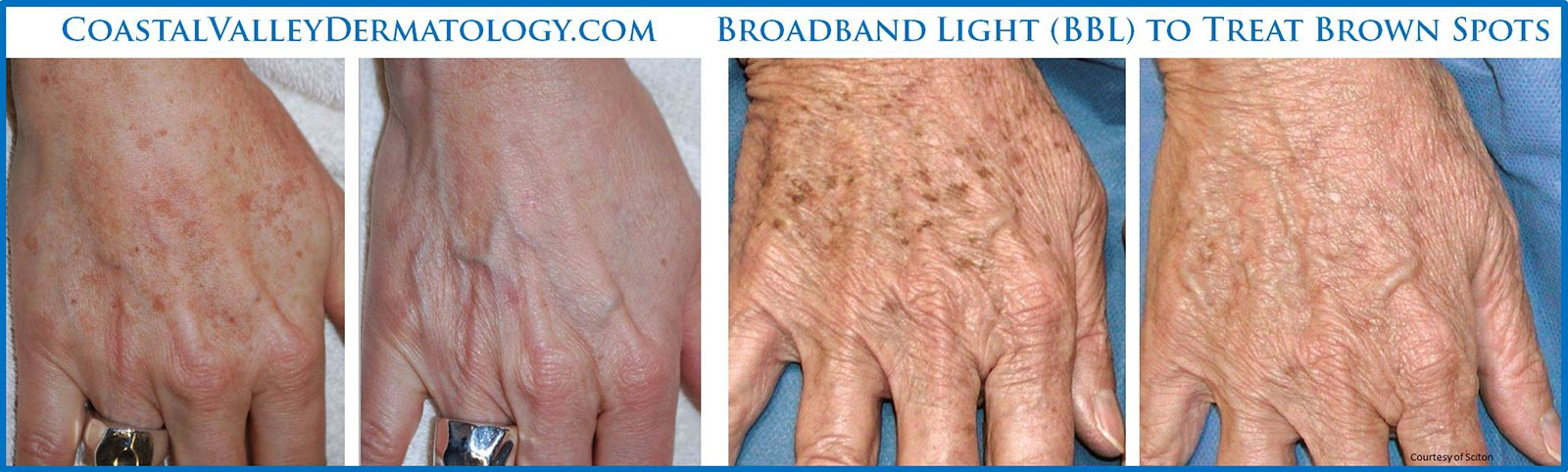 coastal-valley-dermatology-carmel-hands-brown-spots-treatment-photo