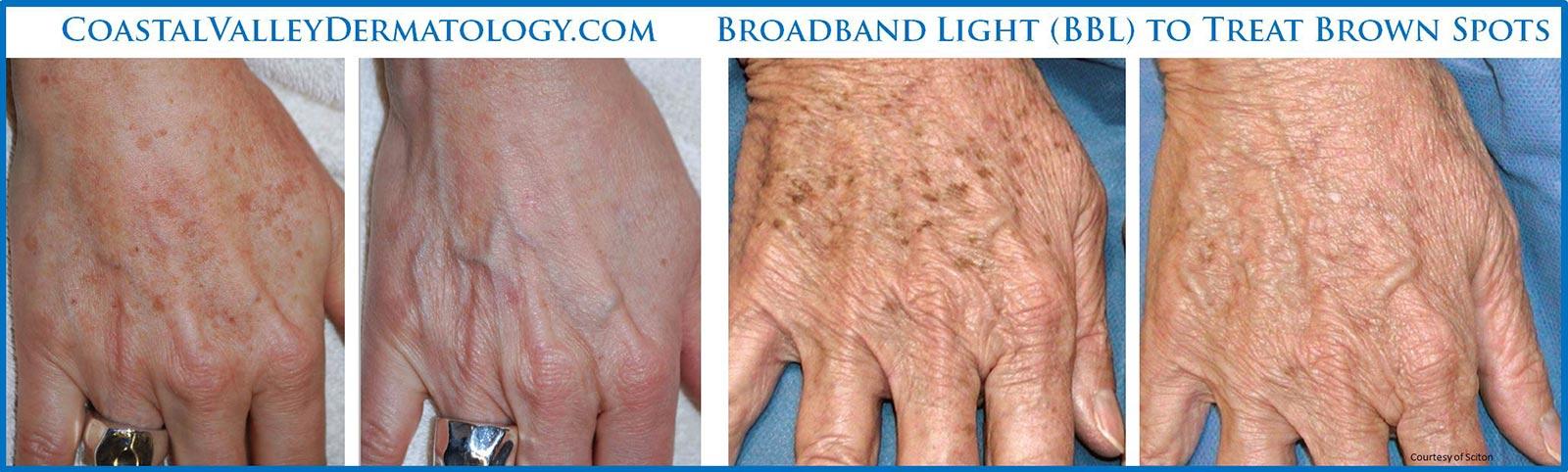 coastal-valley-dermatology-carmel-hands-brown-spots-treatment-photo