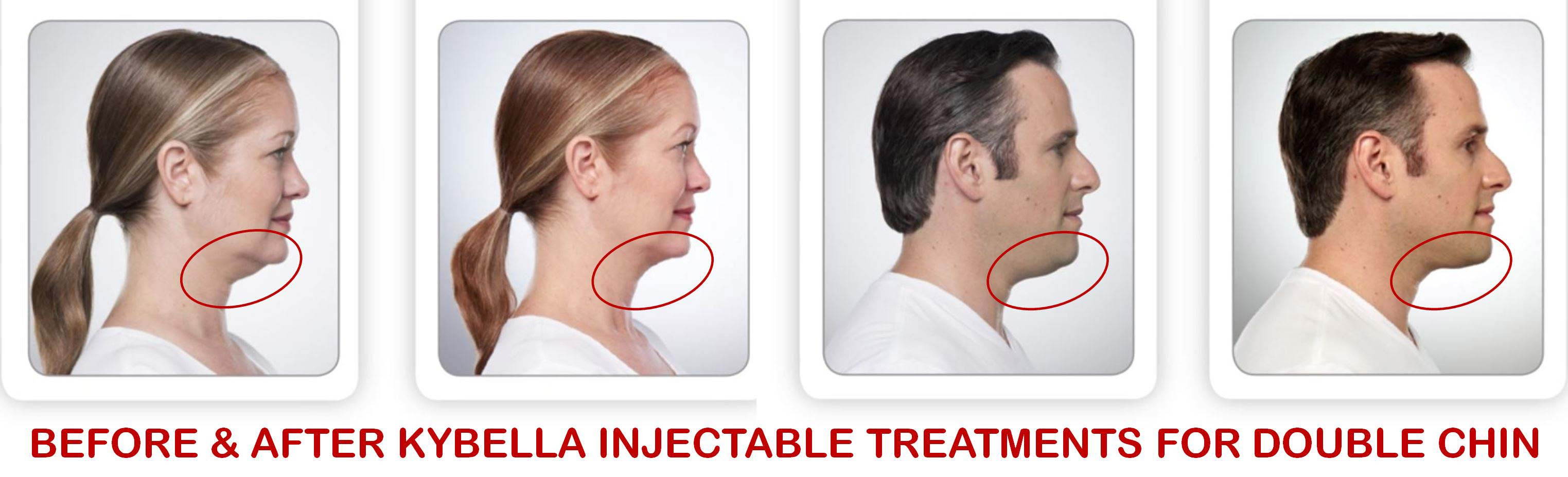 coastal-valley-dermatology-carmel-kybella-before-after-photo