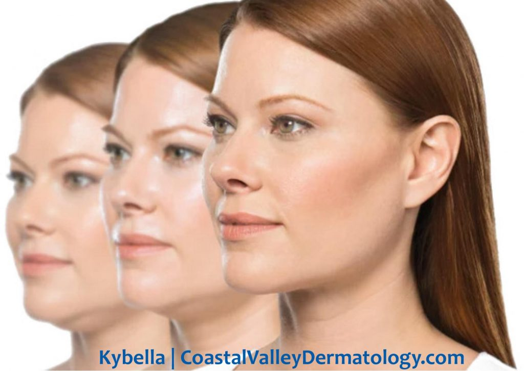 coastal-valley-dermatology-carmel-kybella-fat-under-chin-photo