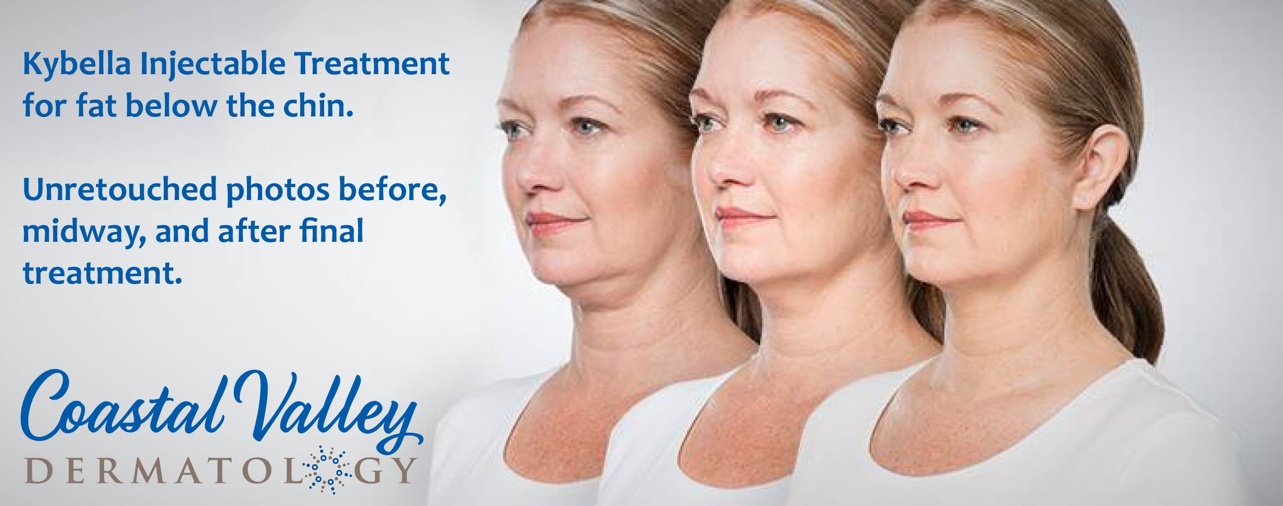 coastal-valley-dermatology-carmel-kybella-treat-chin-fat-photo