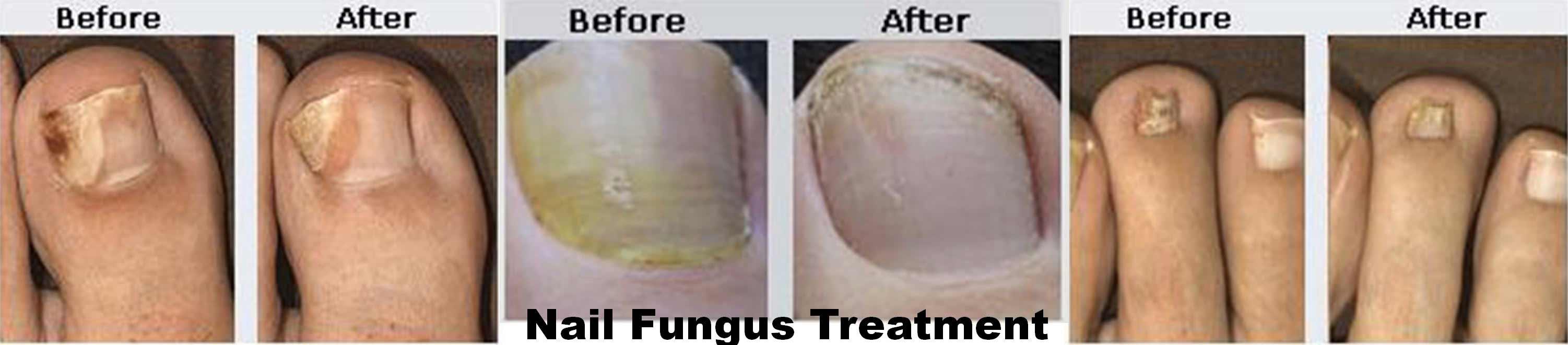 coastal-valley-dermatology-carmel-nail-fungus-laser-treatment-photo