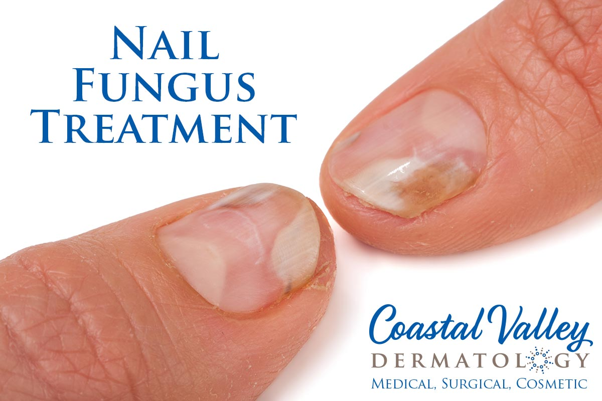 Nail Fungus | Coastal Valley Dermatology