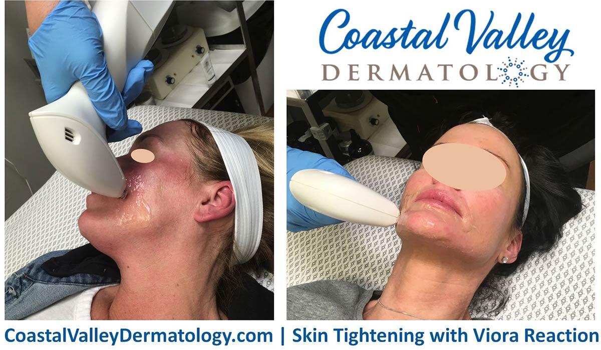 coastal-valley-dermatology-carmel-skin-tightening-immediate-effects-photo