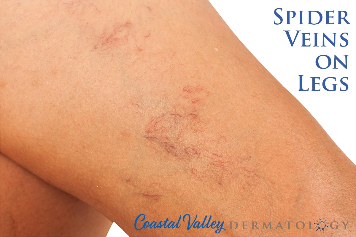 coastal-valley-dermatology-carmel-spider-veins-leg-photo