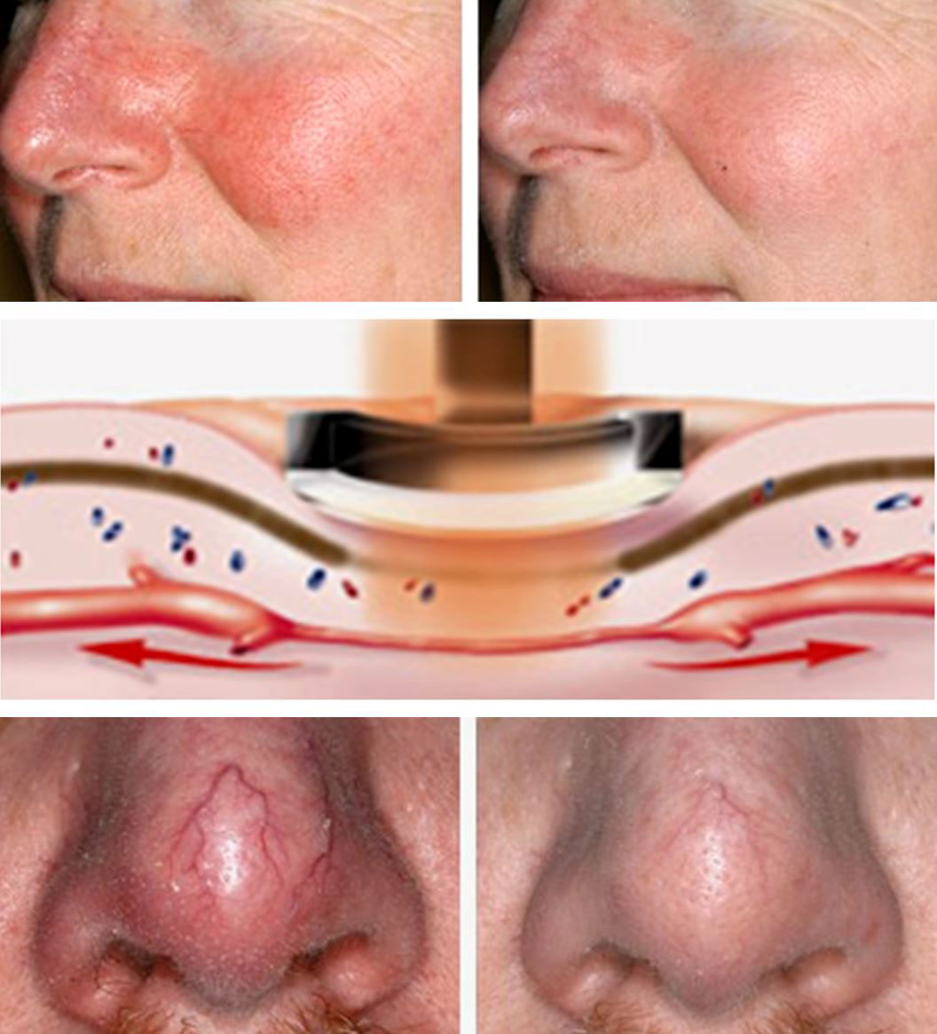 coastal-valley-dermatology-carmel-spider-veins-nose-face-photo
