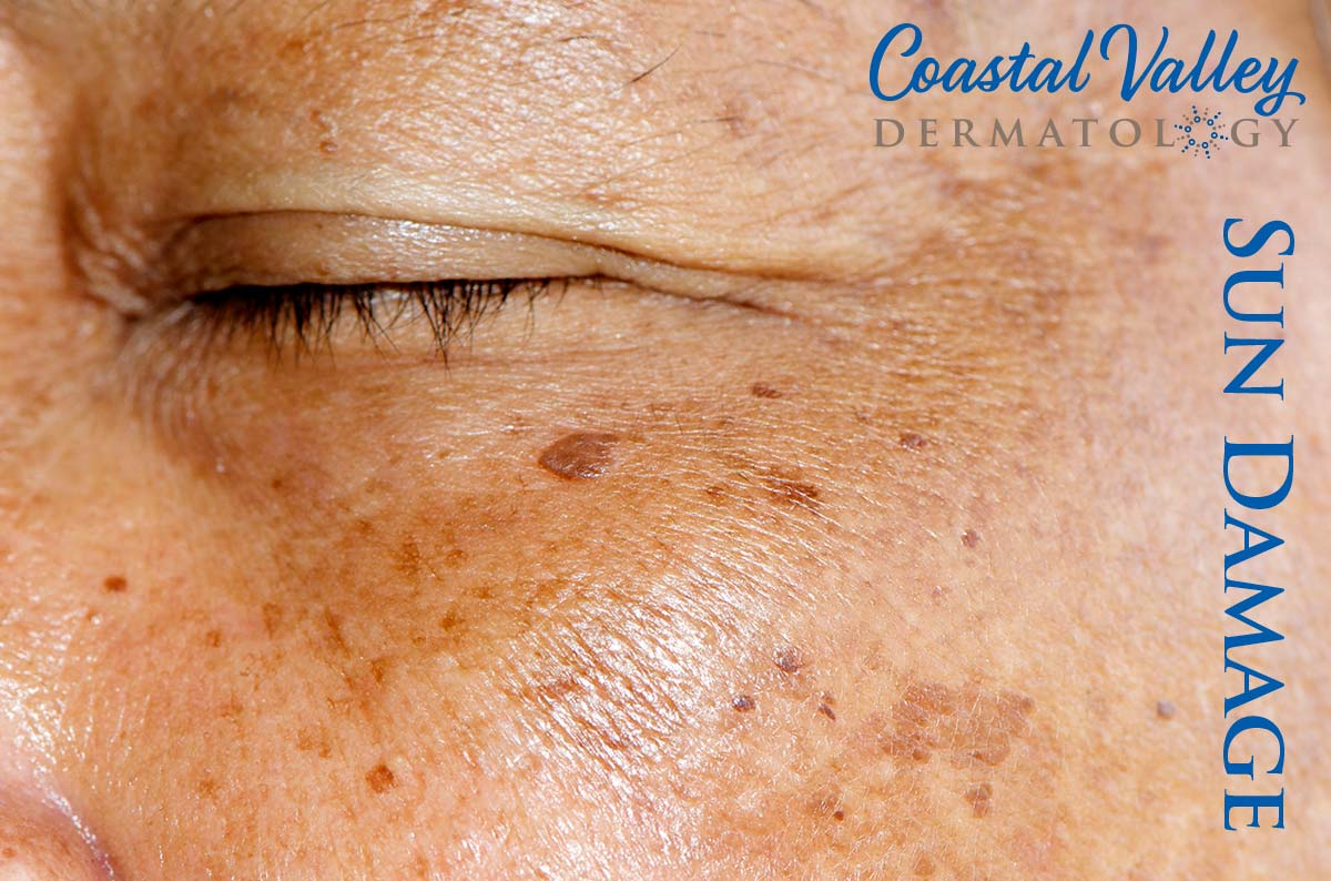 coastal-valley-dermatology-carmel-sun-damage-treatment-photo