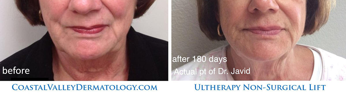 coastal-valley-dermatology-carmel-ultherapy-before-after-photo
