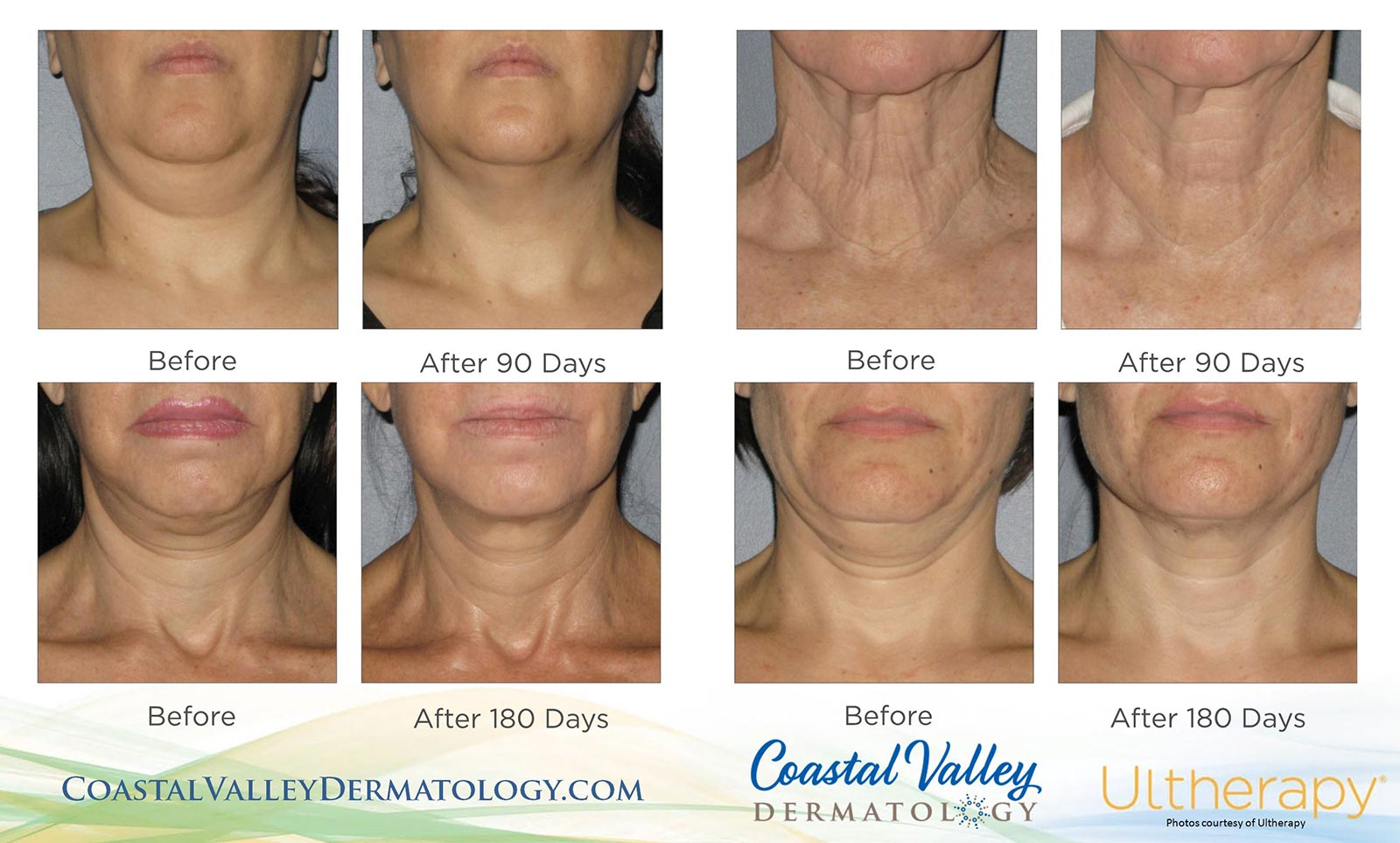 coastal-valley-dermatology-carmel-ultherapy-chin-neck-results-photo