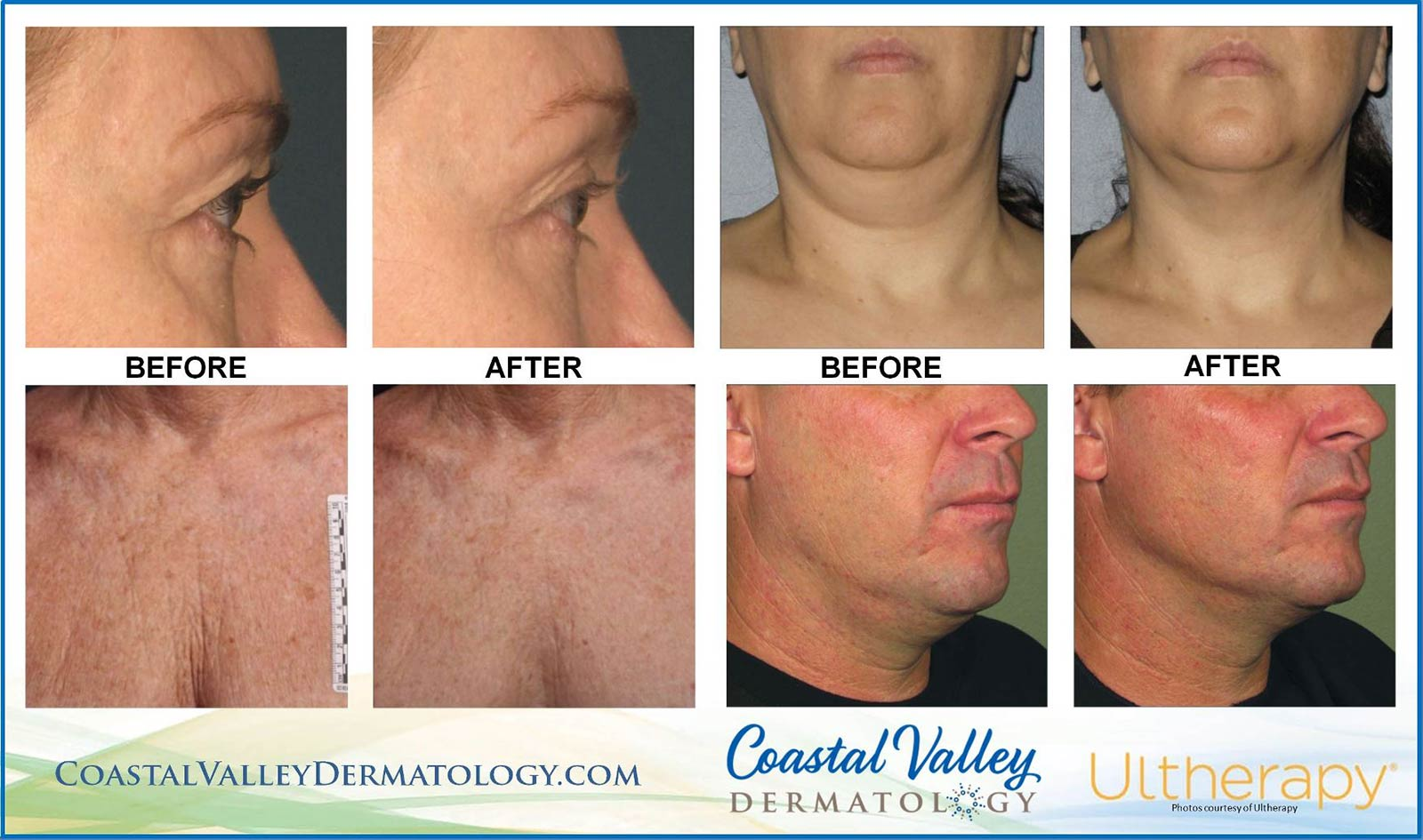 coastal-valley-dermatology-carmel-ultherapy-face-eyes-chest-results-photo