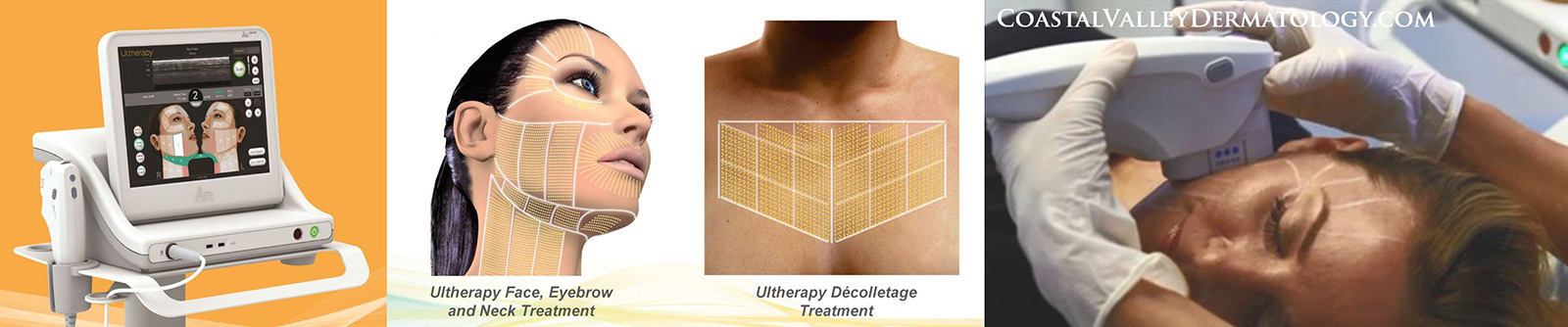 coastal-valley-dermatology-carmel-ultherapy-procedure-non-surgical-photo