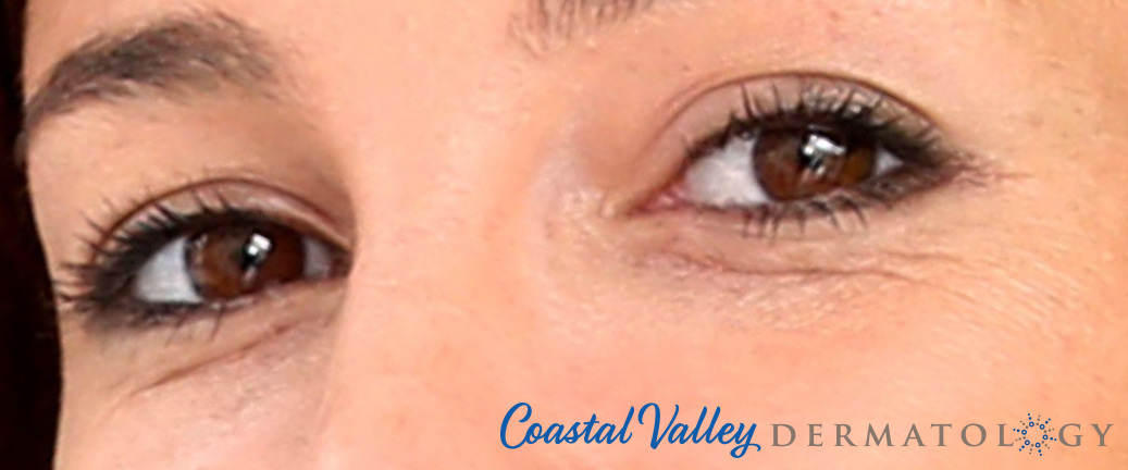 coastal-valley-dermatology-carmel-under-eye-circles-hollows-photo