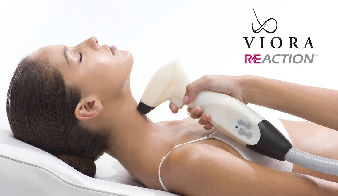 coastal-valley-dermatology-carmel-viora-reaction-neck-tightening-photo