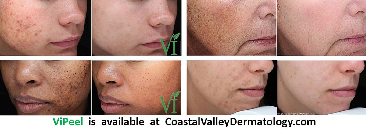 coastal-valley-dermatology-carmel-vipeel-before-after-pictures-photo