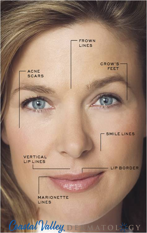 coastal-valley-dermatology-carmel-wrinkle-injectable-treatment-photo