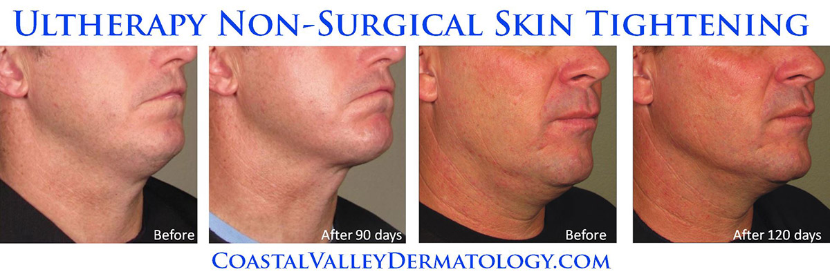 coastal-valley-dermatology-camel-ultherapy-men-skin-tightening-photo