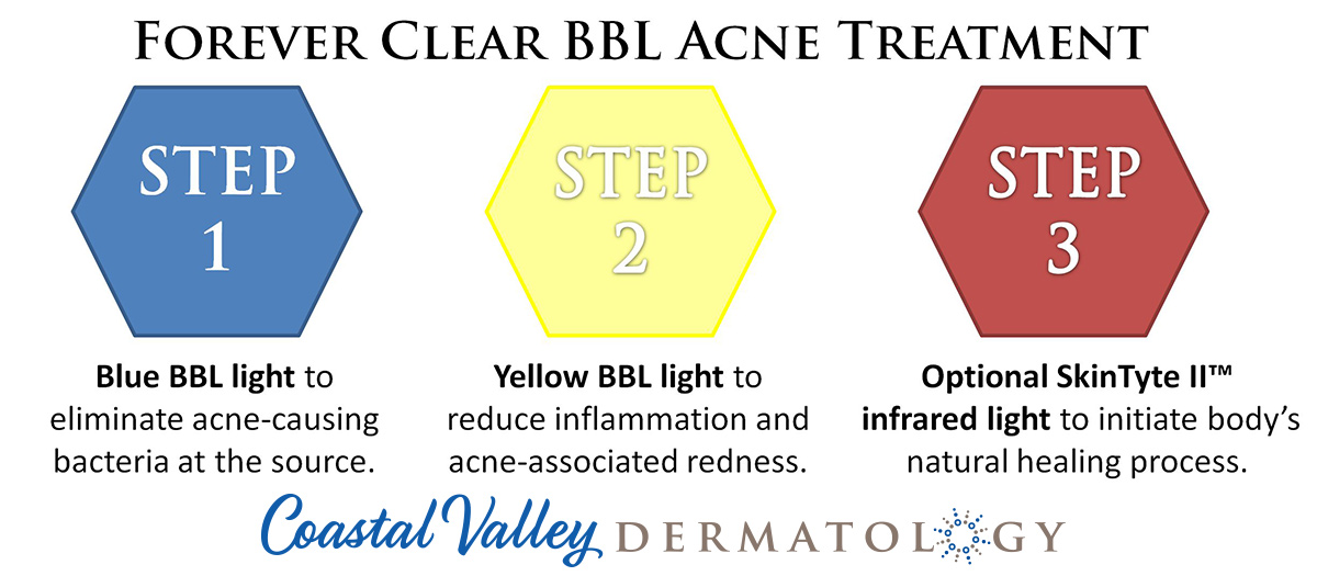 coastal-valley-dermatology-carmel-acne-light-treatment