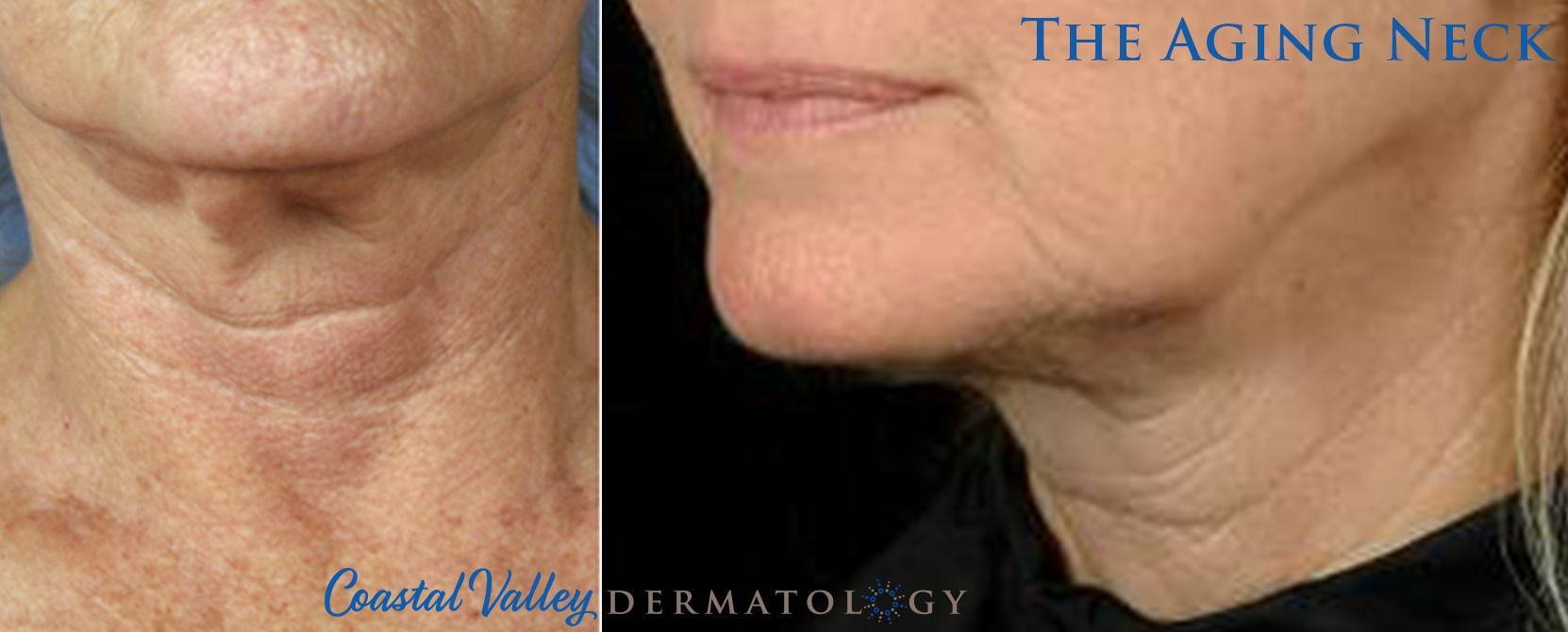 coastal-valley-dermatology-carmel-aging-neck-rejuvenation-photo