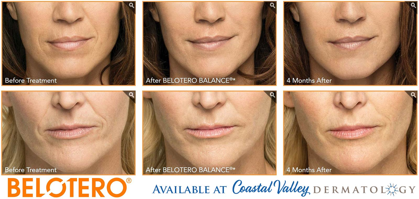coastal-valley-dermatology-carmel-belotero-balance-before-after-photo