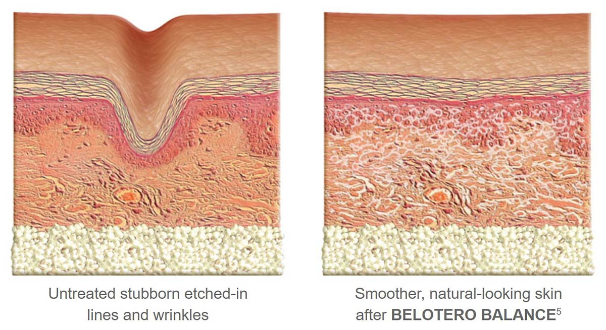 coastal-valley-dermatology-carmel-belotero-how-it-works-photo