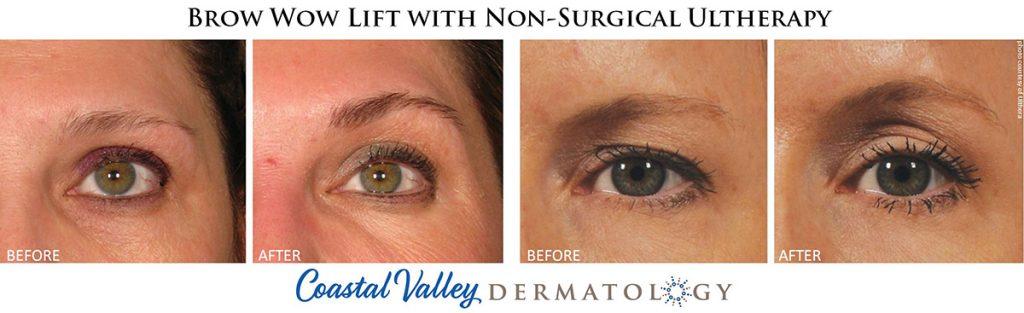 coastal-valley-dermatology-carmel-brow-wow-eye-lift-ultherapy-photo