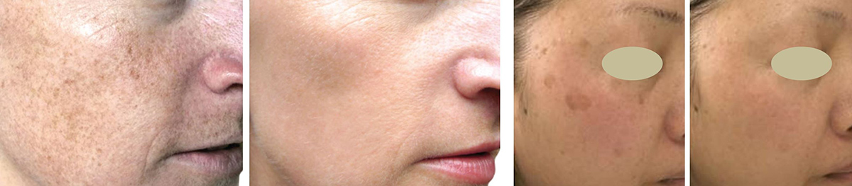 coastal-valley-dermatology-carmel-brown-spots-pigmentation-treatment-photo