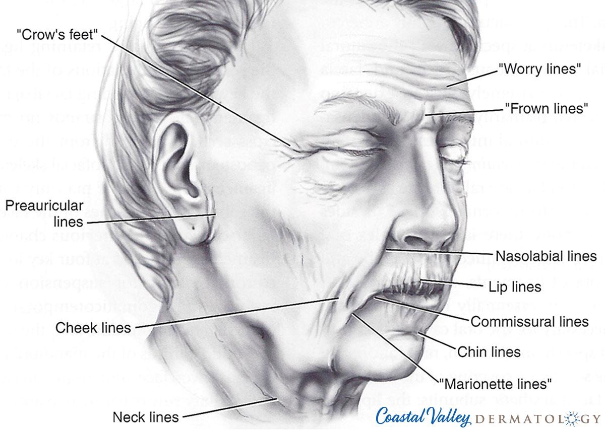 coastal-valley-dermatology-carmel-collagen-breakdown-aging-photo