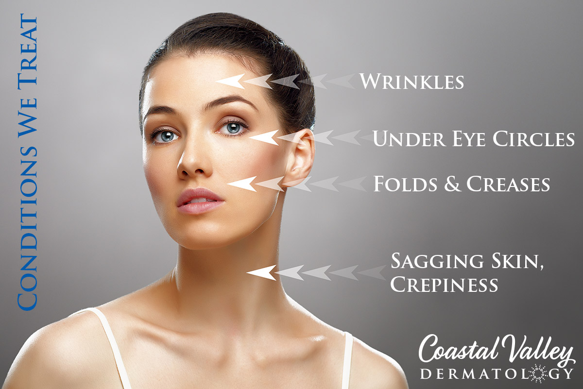 coastal-valley-dermatology-carmel-conditions-we-treat-photo