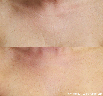 coastal-valley-dermatology-carmel-dermasweepmd-chest-photo