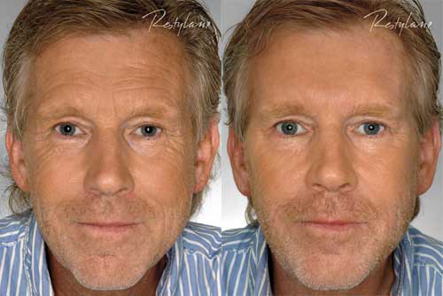 coastal-valley-dermatology-carmel-filler-injectable-men-photo