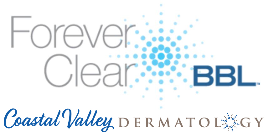 coastal-valley-dermatology-carmel-forever-clear-bbl-treatment-photo