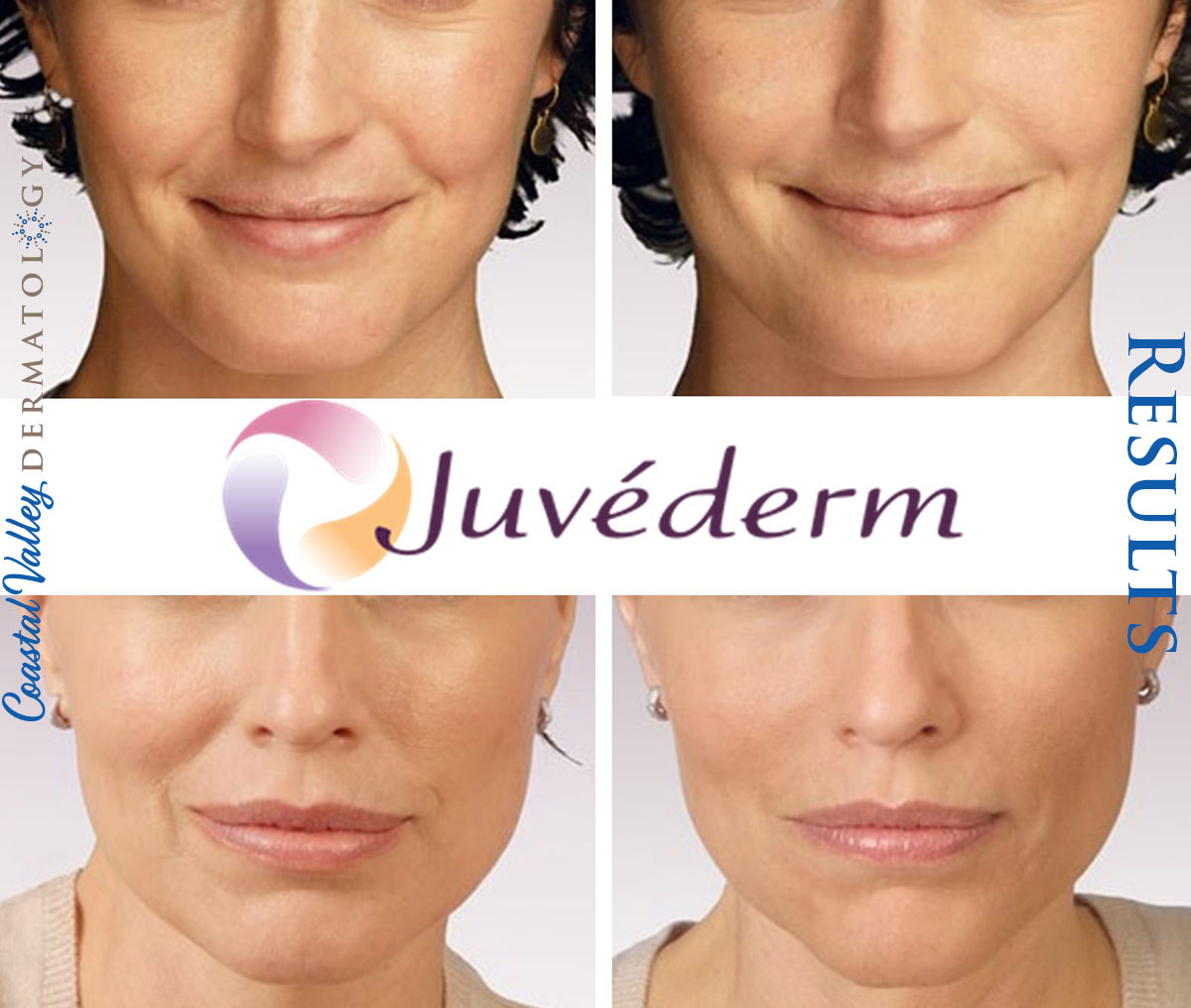 coastal-valley-dermatology-carmel-juvederm-before-after-photo