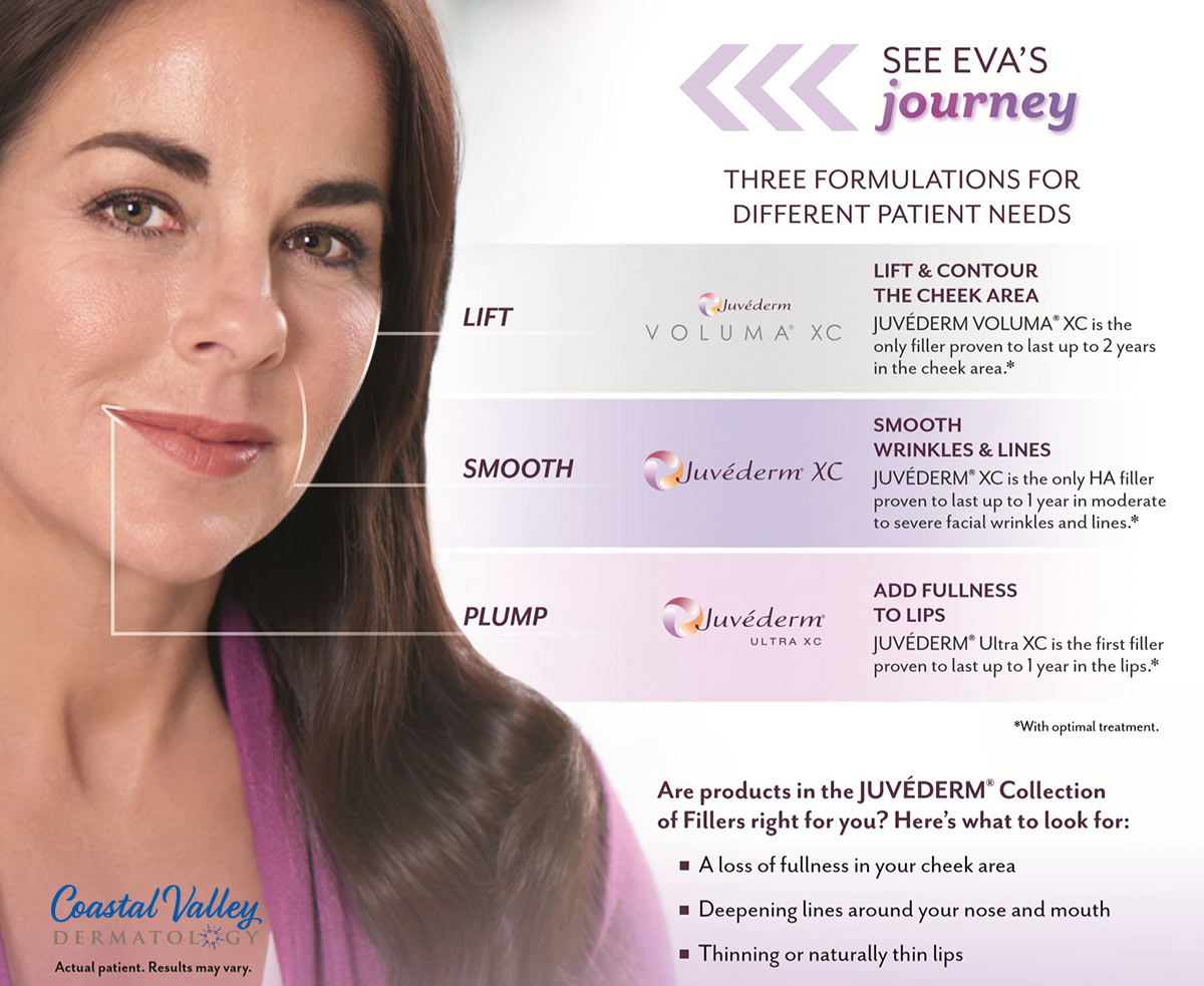 coastal-valley-dermatology-carmel-juvederm-family-injectable-filler-photo