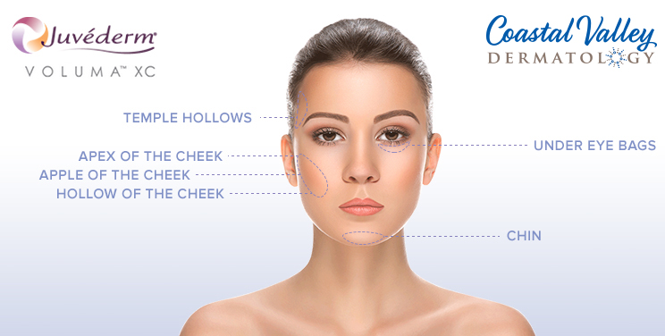 coastal-valley-dermatology-carmel-juvederm-wrinkle-filler-photo