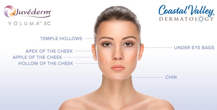 coastal-valley-dermatology-carmel-juvederm-wrinkle-filler-photo