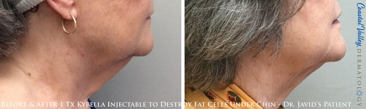 coastal-valley-dermatology-carmel-kybella-under-chin-fat-photo