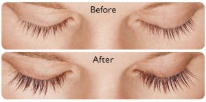 coastal-valley-dermatology-carmel-latisse-longer-fuller-lashes-photo