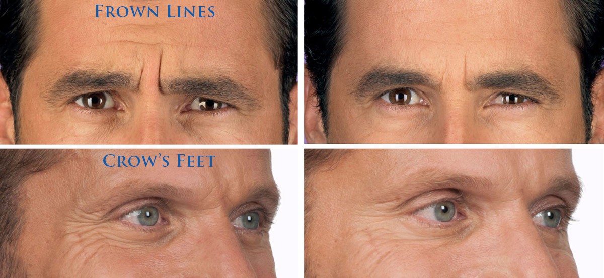 coastal-valley-dermatology-carmel-men-crows-feet-frown-lines-photo